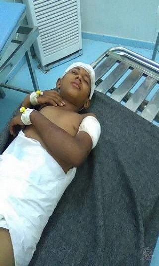 صور- مليشيا الحوثي ترتكب مجزرة جديدة بحق المدنيين بمدينة حيس في الحديدة