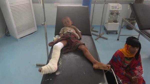إصابة مدنيين معظمهم نساء وأطفال وشيوخ بقصف حوثي استهدف منازلهم بالحديدة